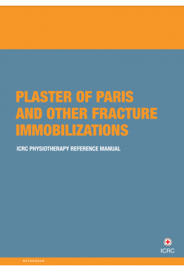Plaster of Paris and other fracture immobilizations